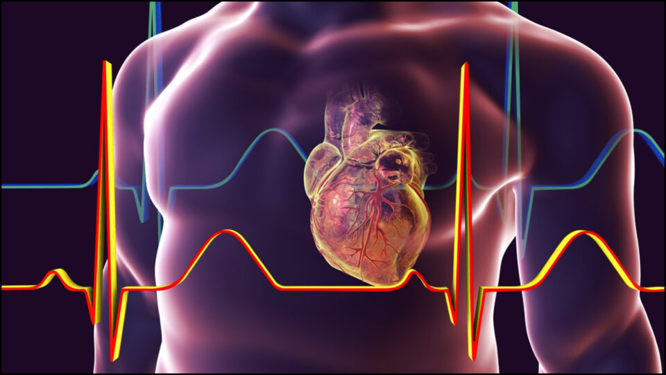 It is important to know - how cardiac arrest is different from heart attack